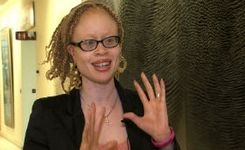 Albinism - Girls & Women - Discrimination & Abuse - UN Independent Expert Report - Girl's Testimonial Video +